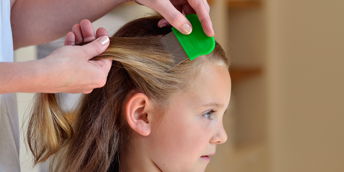 6 Tips on How to Prevent Head Lice.
