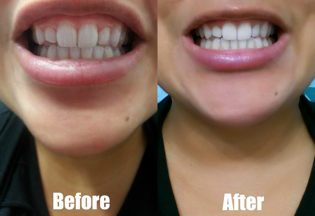 Whiten Professional Teeth Whitening At Home System Smile More